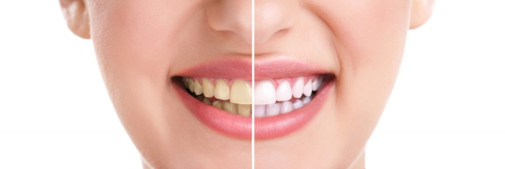 Sorriso antes e depois